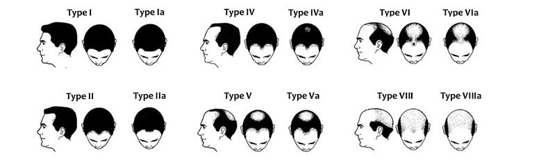 hair-lose-image