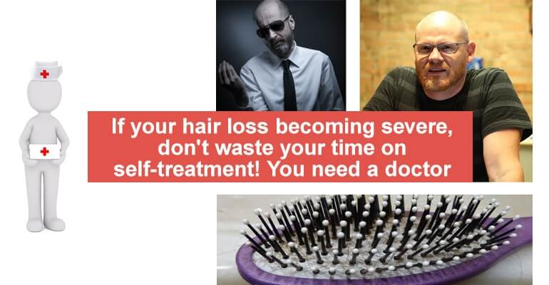hair loss doctor