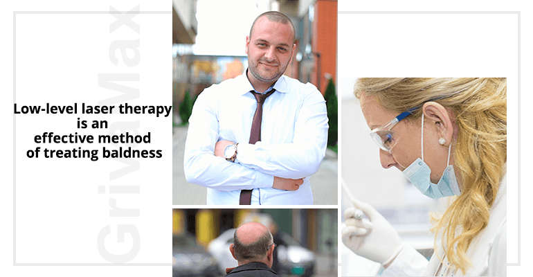 Low-level laser therapy is an effective method of treating baldness